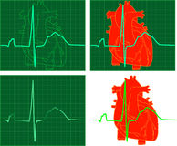 EKG_ECG. Four raster graphic illustrations depicting an EKG Stock Images