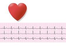 EKG/ ECG 3 Stock Images