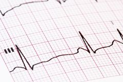 Ekg/ ecg as a background Royalty Free Stock Image