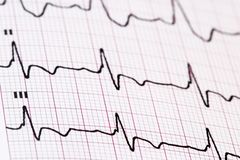 Ekg/ ecg as a background Stock Photo