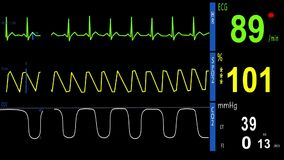 EKG, ECG, Heart Monitor. Normal Sinus Rhythm. ekg monitor show the waves ekg, saturation, kapnograf stock footage