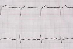 ekg/ ecg - medical background Royalty Free Stock Photography