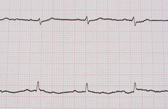 Ekg/ ecg - medical background Stock Photography