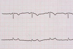 Ekg/ ecg - medical background Stock Photos