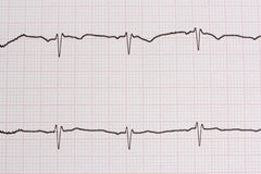 Ekg/ ecg - medical background Royalty Free Stock Photo