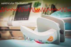 Paddle EKG or ECG monitor. EKG or ECG monitor in emergency room selective focus paddle stock image