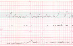 EKG or ECG result Stock Images