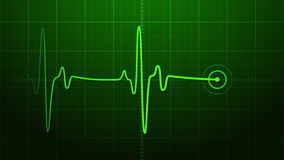 EKG - Electrocardiogram Royalty Free Stock Photography