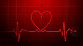 EKG - Elektrokardiogramm Stockbilder