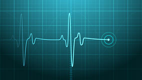 EKG - Elektrokardiogramm Lizenzfreie Stockbilder