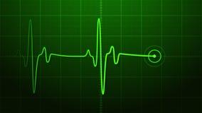 EKG - Elettrocardiogramma Fotografia Stock Libera da Diritti