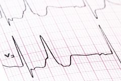 EKG - fondo médico Foto de archivo