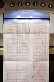 EKG graph stock photography