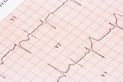 EKG graph Royalty Free Stock Image