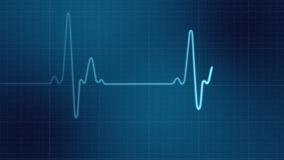 EKG heart monitor. For medical concept Royalty Free Stock Images