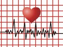 EKG - Heart Monitor Royalty Free Stock Photo