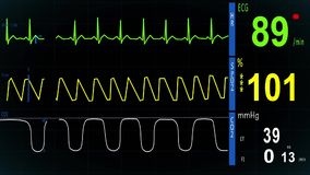 EKG heart monitor. Normal Sinus Rhythm. ekg monitor show the waves ekg, saturation, kapnograf stock video footage