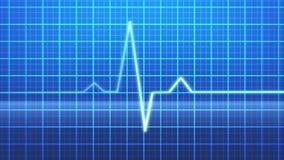 EKG stock footage