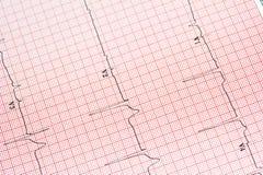 EKG Hintergrund Lizenzfreie Stockfotos