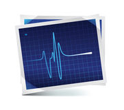 EKG icon. Illustration of  heart beat / EKG icon Stock Image