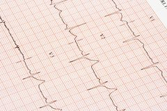 EKG kartlägger royaltyfria bilder