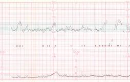 EKG lub ECG rezultat Obrazy Stock