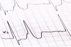 EKG - medical background Stock Photo