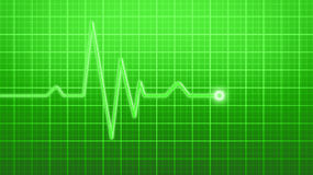 EKG monitor Stock Photography