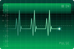 EKG monitor Royalty Free Stock Photo