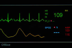 EKG monitor in ICU unit Royalty Free Stock Photography
