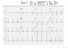 EKG oder ECG Resultat von einer Tretmühle-Belastungsprobe Stockfotografie