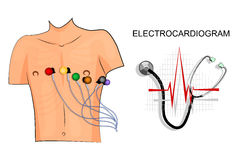 EKG, the patient with the electrodes on the chest. Royalty Free Stock Image