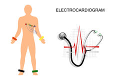 EKG, the patient with the electrodes on the chest. Royalty Free Stock Images