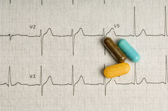 EKG printout Royalty Free Stock Photo