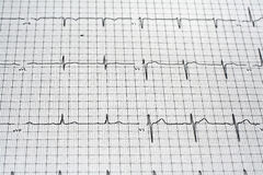 EKG Readout Royalty Free Stock Image