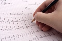EKG results. Doctor looking at EKG results Royalty Free Stock Image
