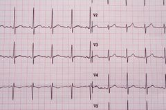 EKG results. The results of a EKG Royalty Free Stock Images