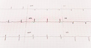 EKG With Selective Focus Royalty Free Stock Images