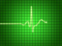 EKG Signal. On green screen Stock Images