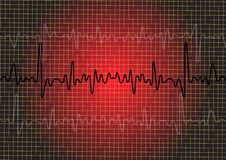 Ekg signal Royalty Free Stock Photo