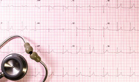 EKG with stethoscope. In pink grid Stock Photo