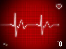 EKG trace Stock Photography