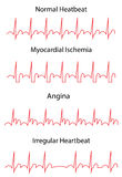 EKG Traces of Normal and Pathologies Royalty Free Stock Photography