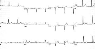 EKG wykresu wydruk zdjęcia stock