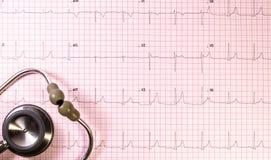 EKG z stetoskopem Zdjęcie Stock