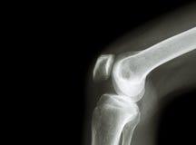 Ekranowego promieniowania rentgenowskiego kolanowy złącze z artretyzmem i pustym terenem przy le podagra, Rheumatoid artretyzm, S Obrazy Stock