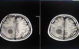 Ekranowy MRI mózg Fotografia Stock
