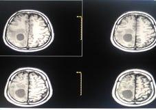 Ekranowy MRI mózg Obrazy Stock