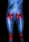 Ekranowy promieniowania rentgenowskiego ciało dziecko i artretyzm przy oba biodro, oba kolanowy podbrzusze, pośladek, udo, kolano obrazy stock