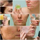 El acné marca con una cicatriz el tratamiento Fotografía de archivo libre de regalías